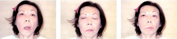 顔面神経麻痺で来院された患者さん 治療前1