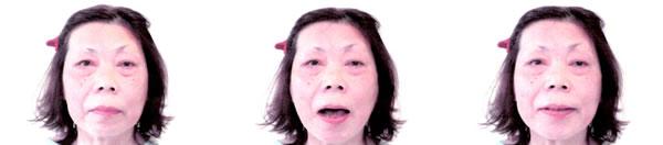 顔面神経麻痺で来院された患者さん 治療後1