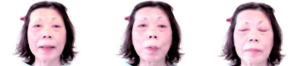顔面神経麻痺で来院された患者さん 治療後2